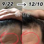 ヒト幹細胞培養液を3ヶ月使った結果。。薄毛とシワが。。。